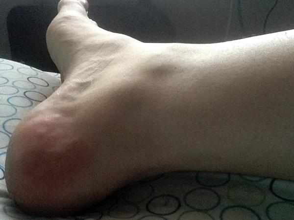 anklepic